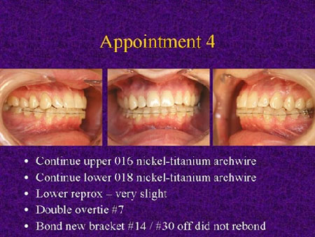 Step-by-Step Invisalign Replacement Case
