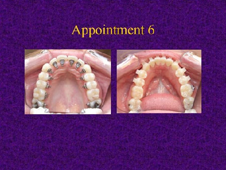 Step-by-Step Invisalign Replacement Case - Free Section